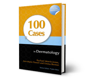 100cases in Dermatology Reference Book