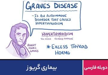 بیماری گریوز