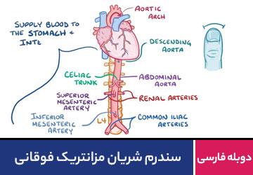 سندرم شریان مزانتریک فوقانی