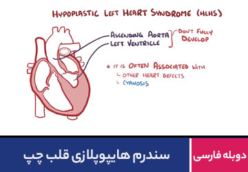 سندرم هایپوپلازی قلب چپ