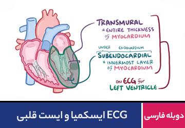 ECG ایسکمیا و ایست قلبی