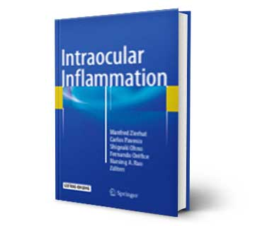 Intraocular Inflammation Reference Book