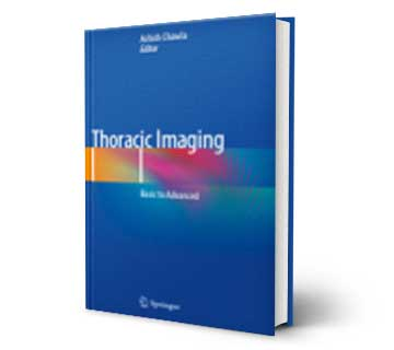 Thoracic Imaging Reference Book