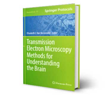 Transmission Electron Microscopy Methods for Understanding the brain Reference Book