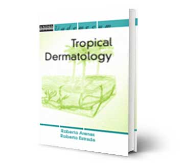 Tropical Dermatology Reference Book