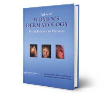 Atlas of Women's Dermatology Reference Book